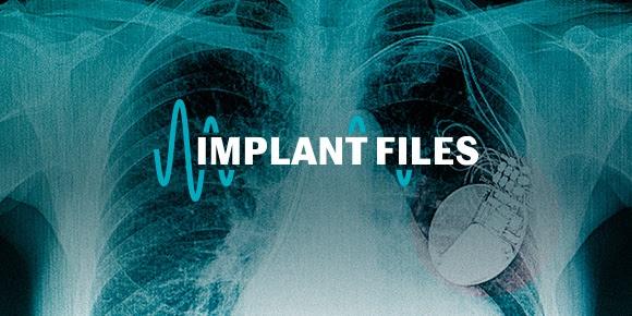 implant files crise